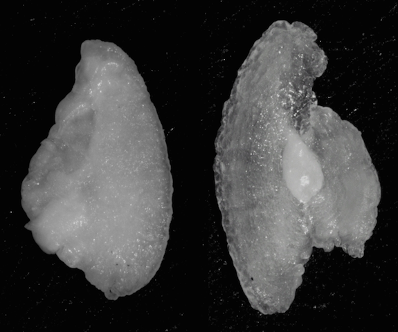 Hearing loss pic-Abnormal otolith on right.png